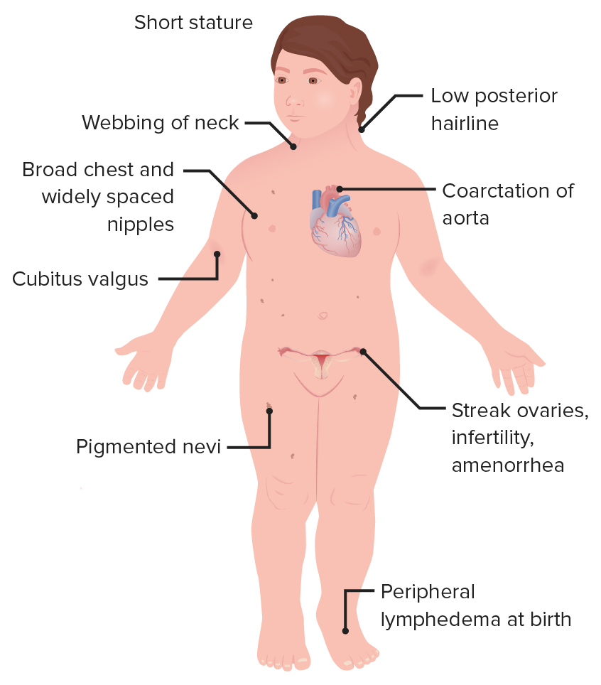 Female with Turner syndrome