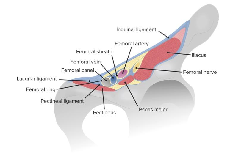 Femoral ring
