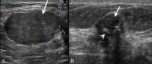 Fibroadenoma-breast USG
