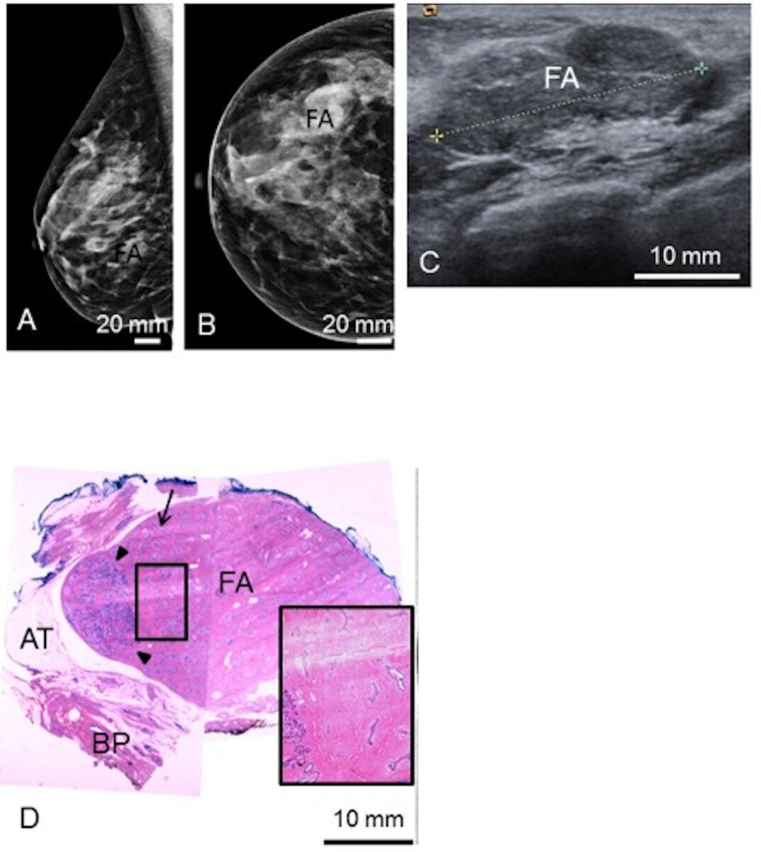 Fibroadenoma imaging
