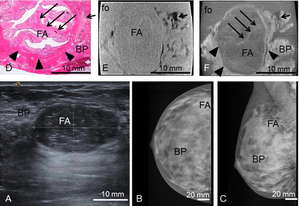 Fibroadenoma preoperative imaging