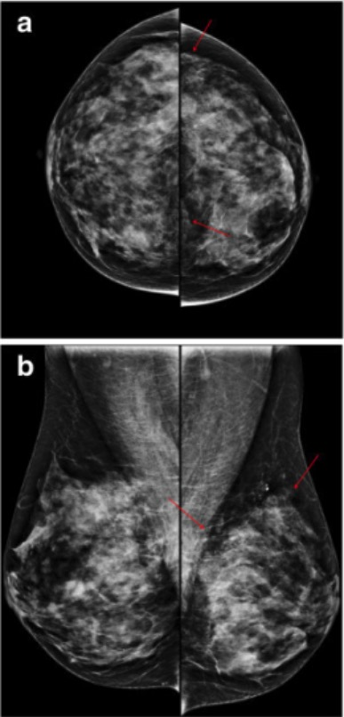 Fibrocystic changes in 50-year-old woman