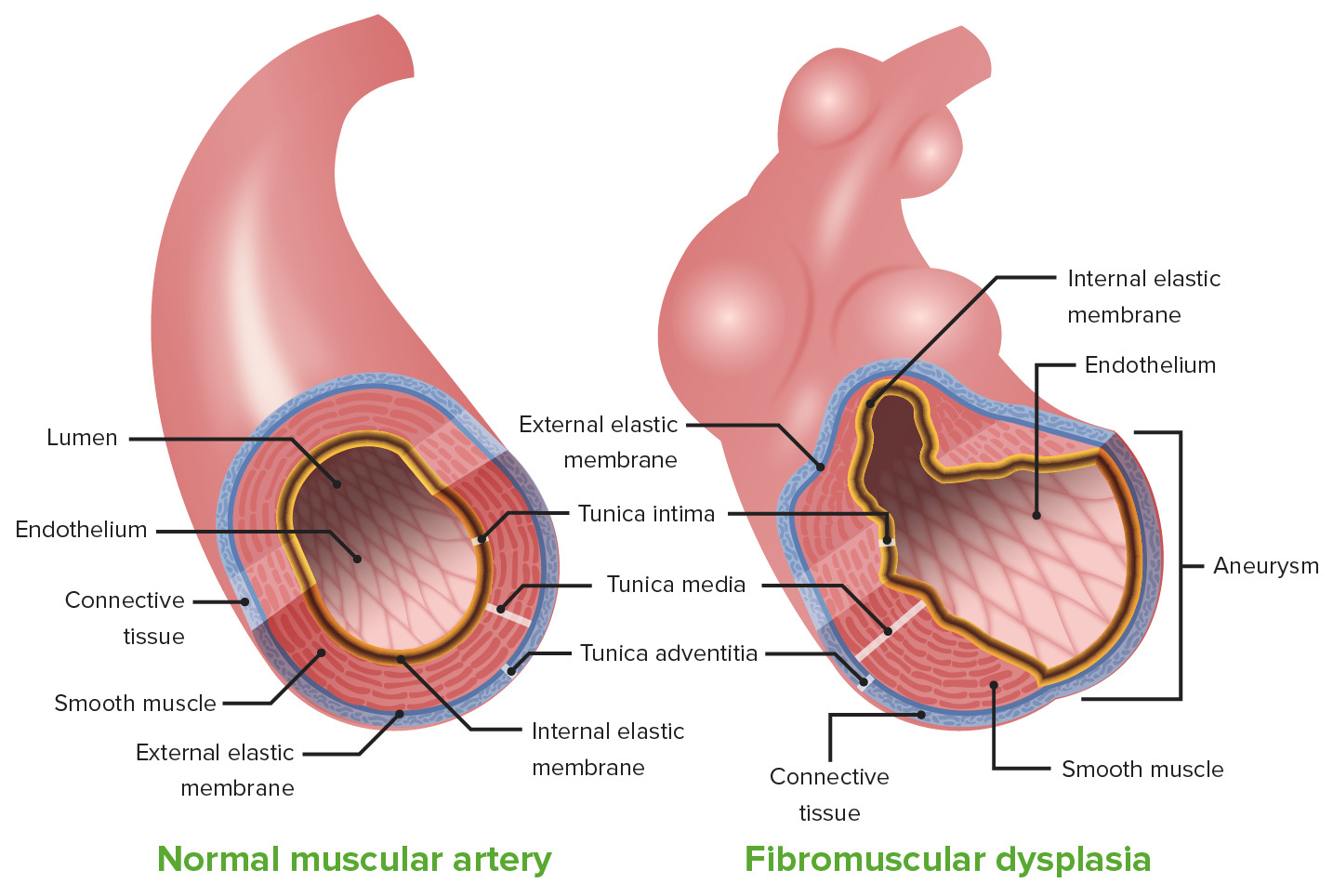 Fibromuscular dysplasia