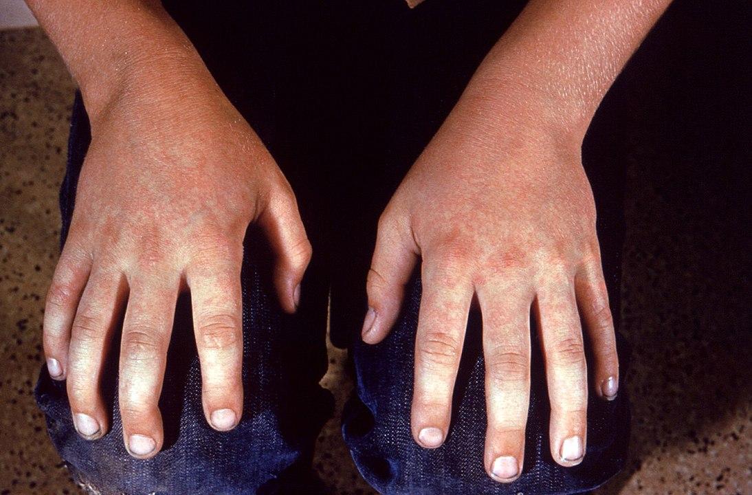 Fifth disease rash