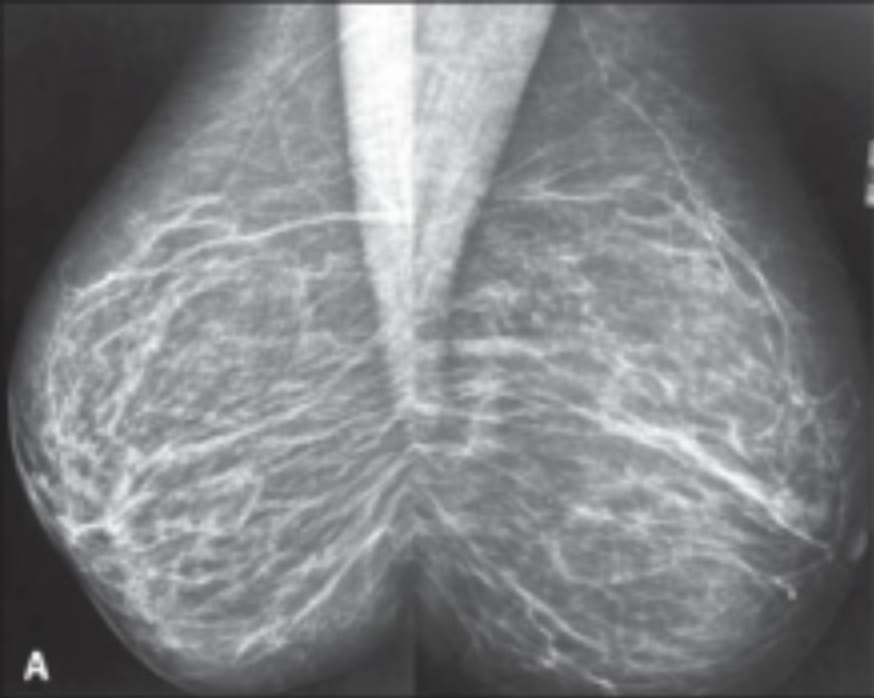 Findings on Mammograph