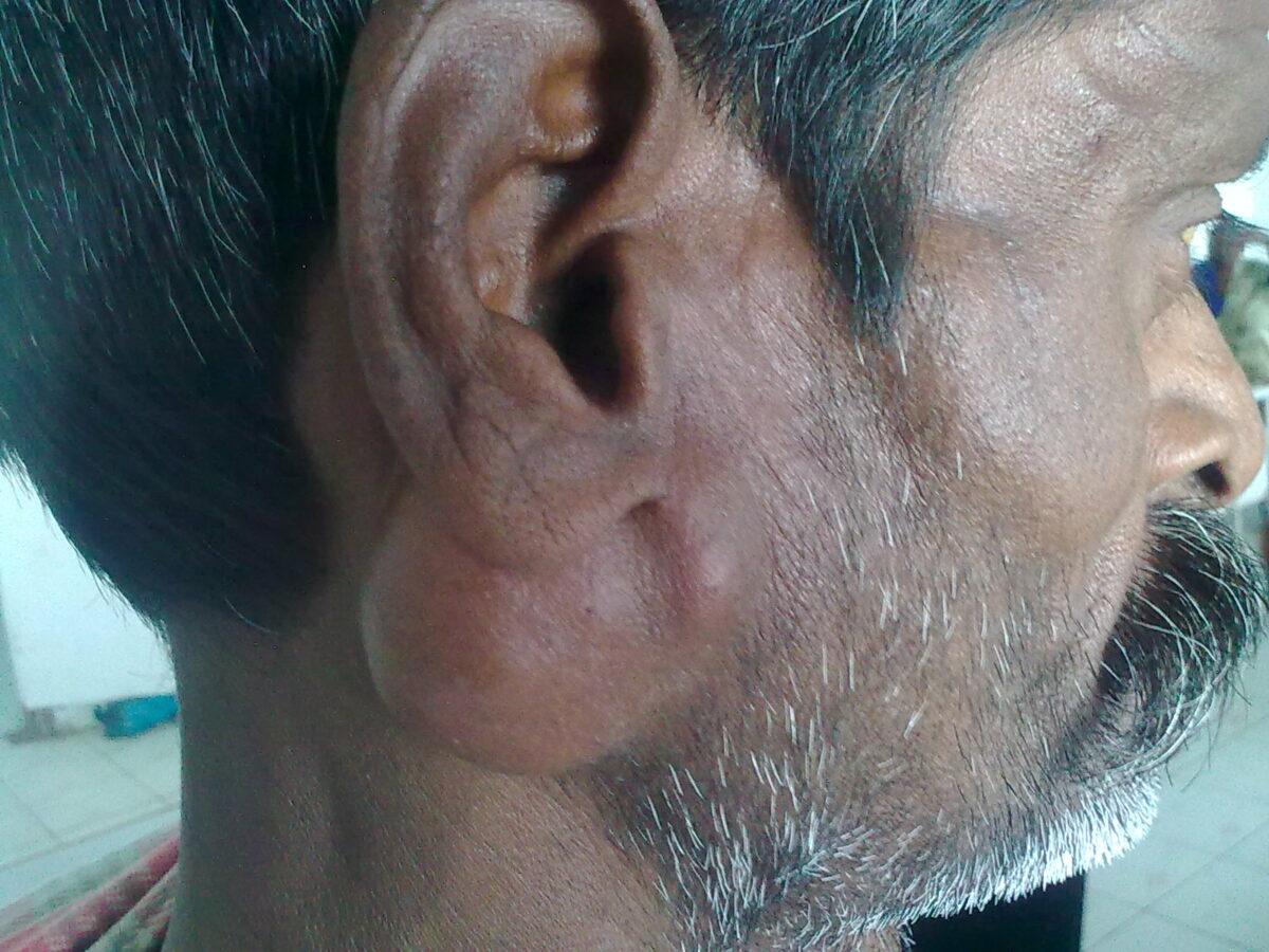 Firm nodule from pleomorphic adenoma