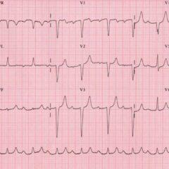 First-degree AV block ECG