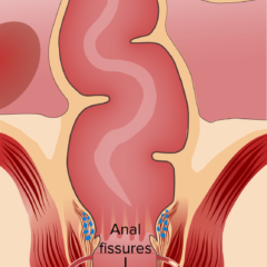 Fistula, fissures and abscess