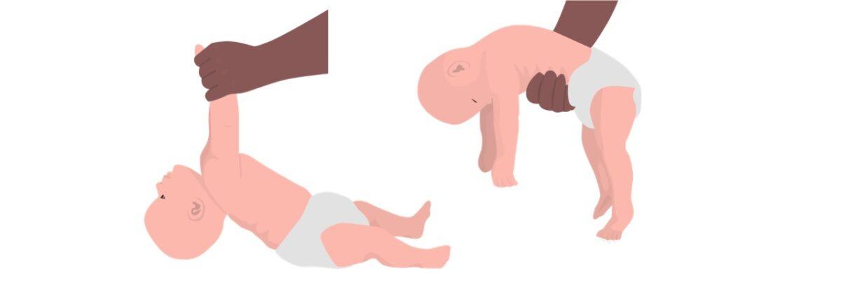 Floppy baby syndrome