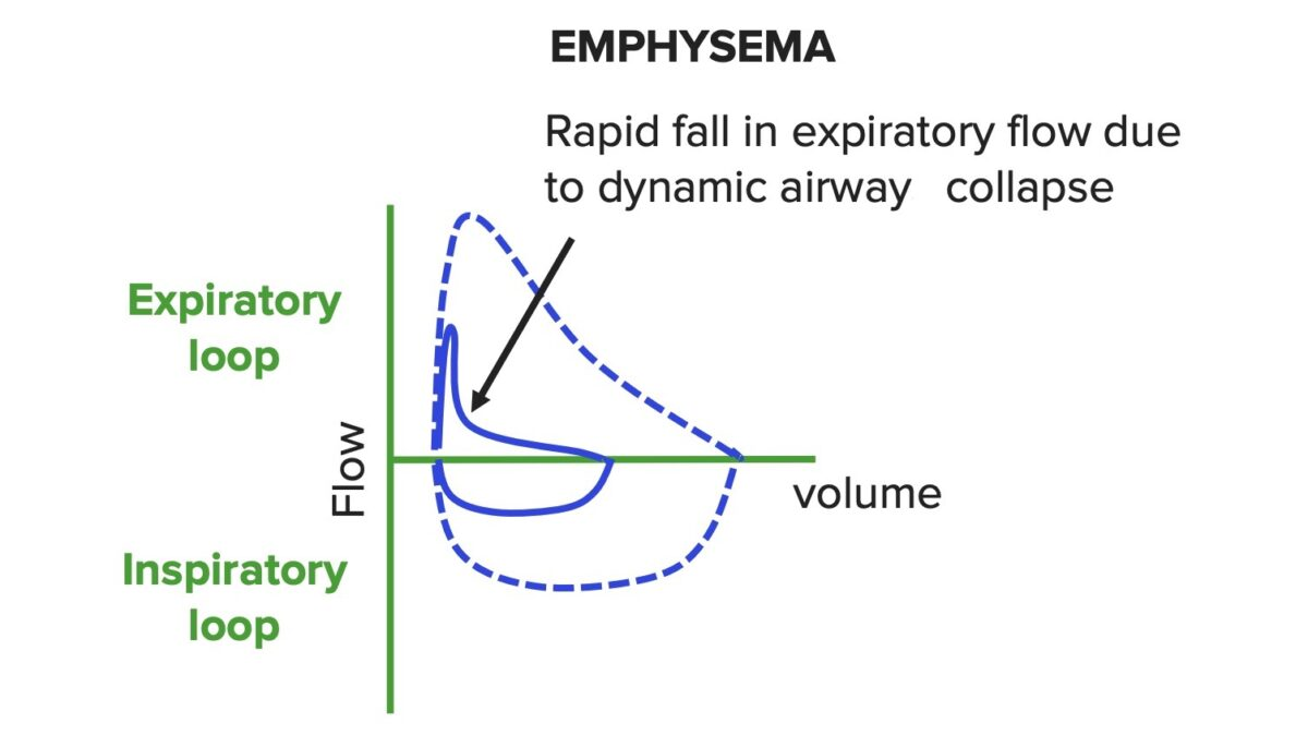 Flow-volume-curve-in-obstructive-lung-disease Emphysema