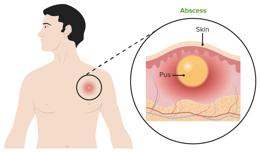 Folliculitis skin abscess