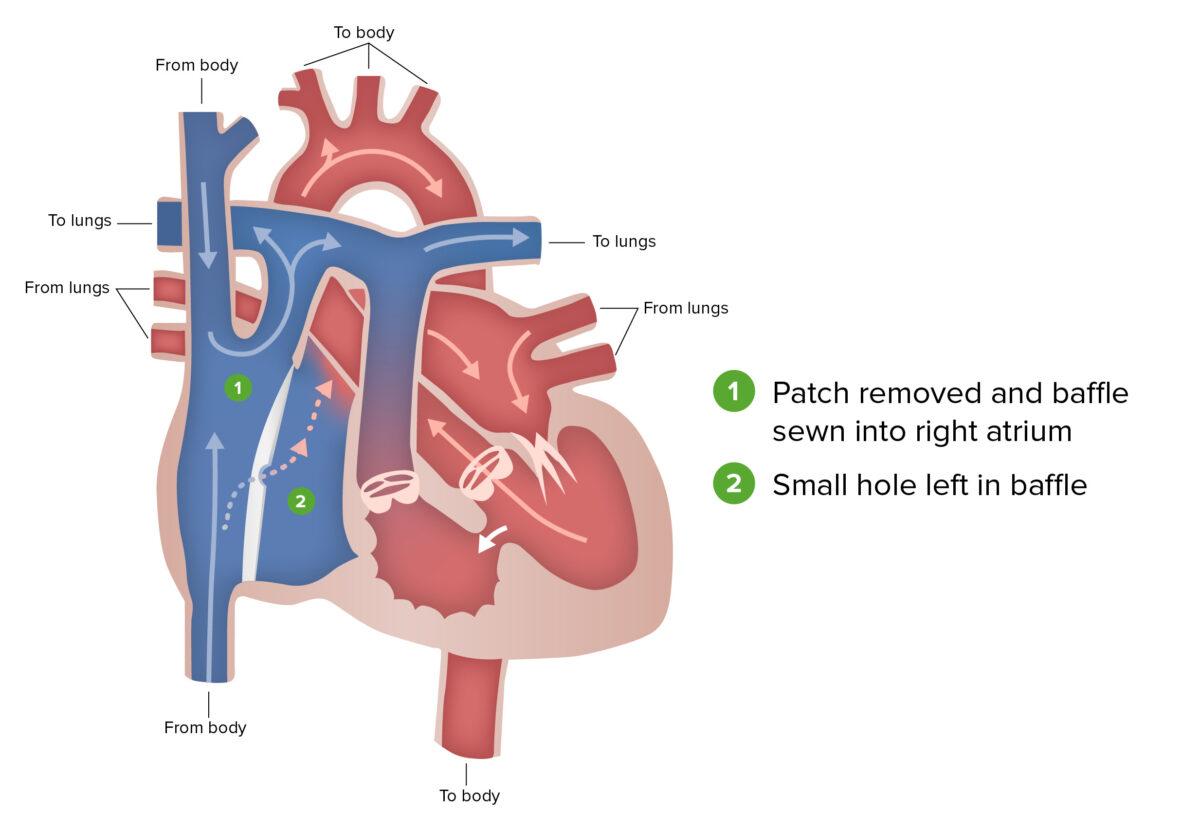 Fontan's procedure