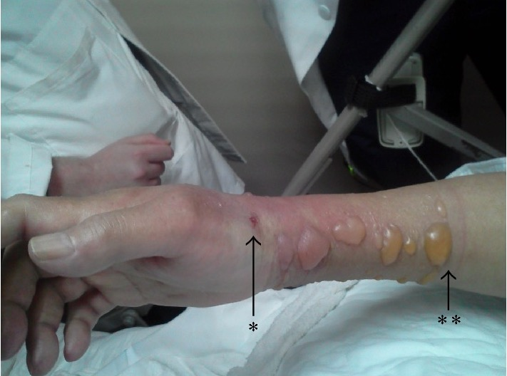 Forearm compartment syndrome