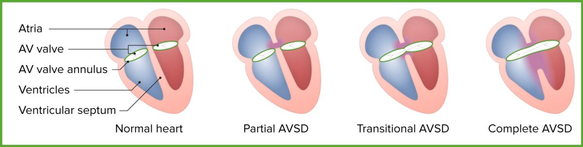 Forms of atrioventricular septal defect