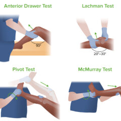 Four exams used to determine the cause of knee pain