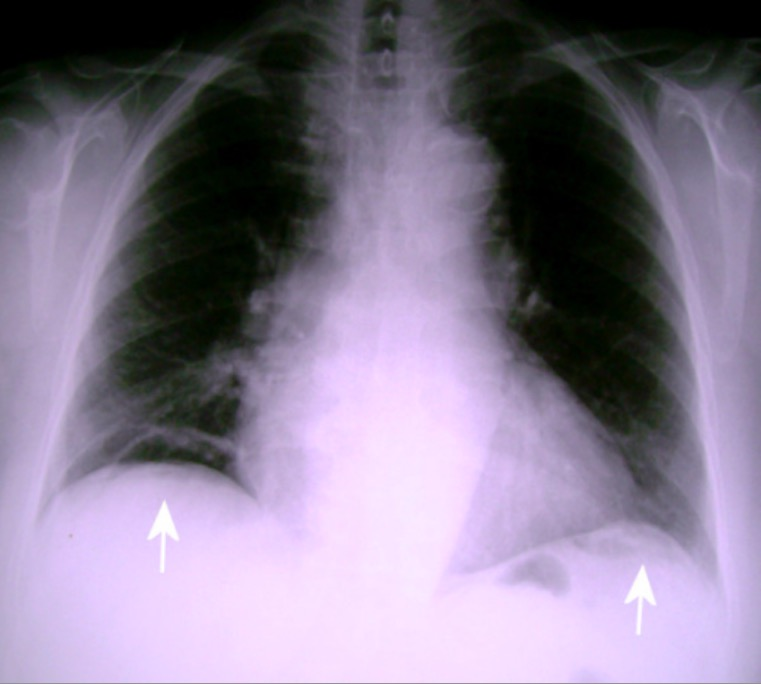 Free subdiaphragmatic air