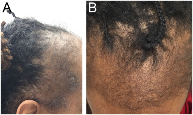 Fringe sign and traction alopecia