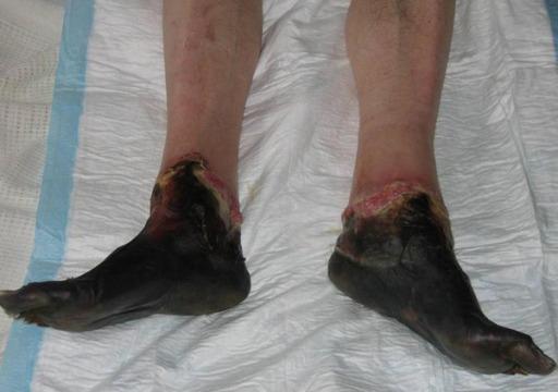 Frostbite causes mummified feet