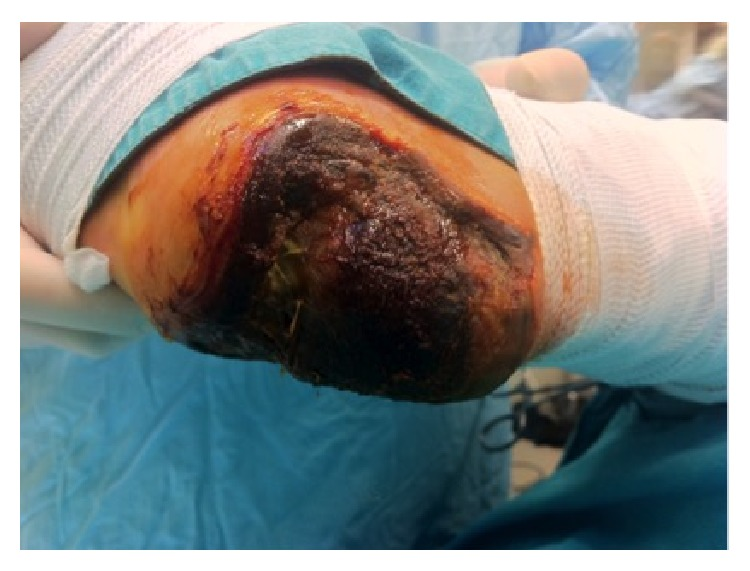 Full-thickness necrosis of the heel due to acute limb ischemia