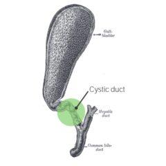 Gallbladder obstruction