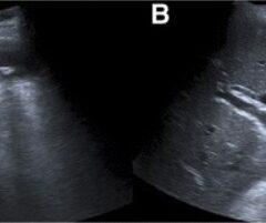 Gallbladder wall thickening acute cholangitis