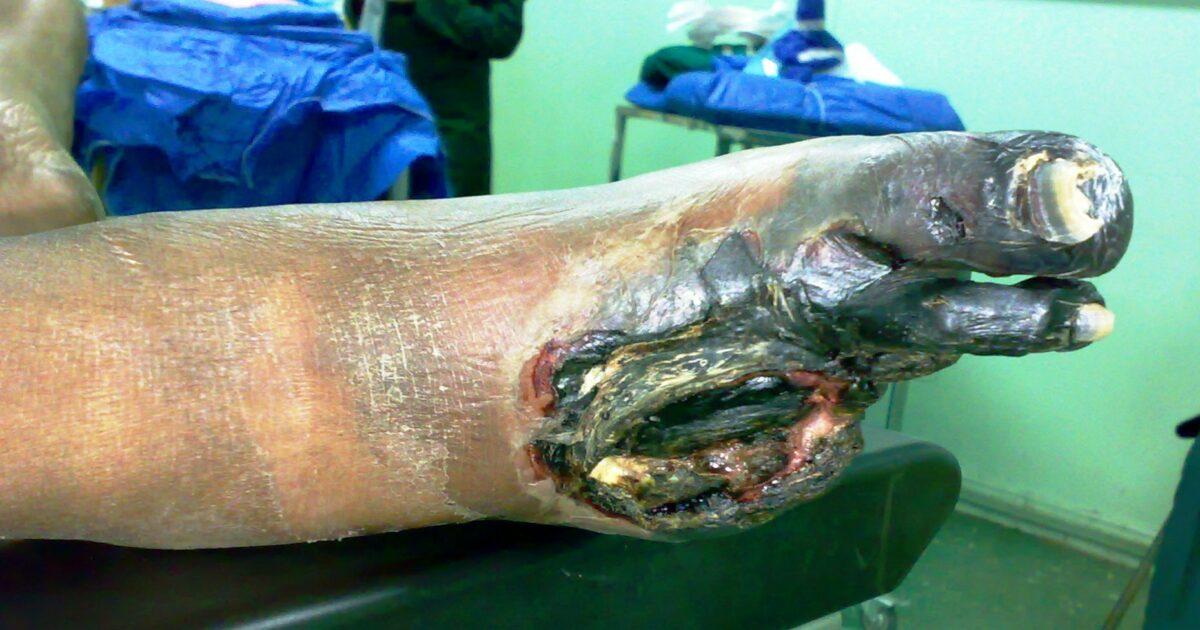 Gangrene Foot