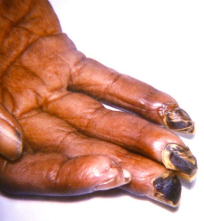 Gangrenous fingertips in scleroderma