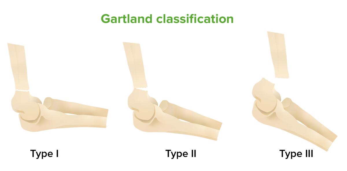 Gartland classification