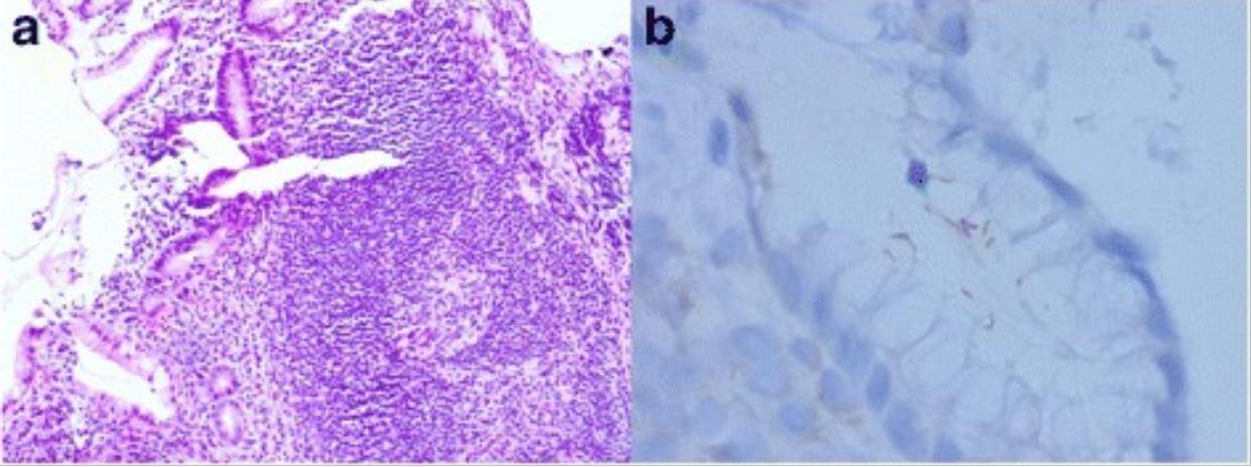 Gastric MALT lymphoma associated with H. pylori