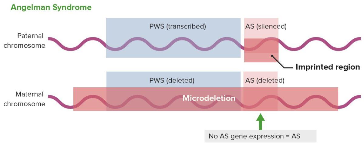 Gene expression in Angelman