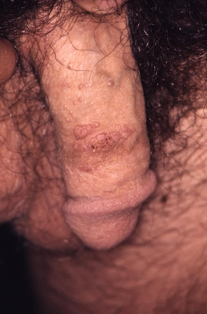 Genital warts on a penis