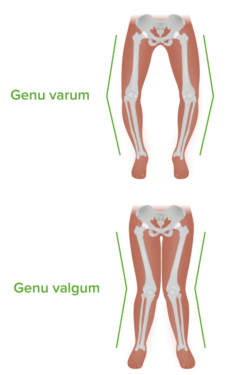 Genu varum and valgum