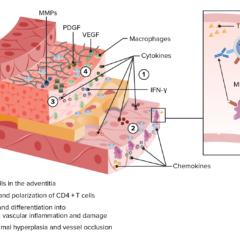 Giant cell arteritis 3