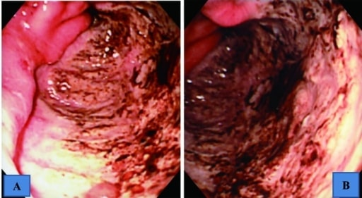 Giant gastric antral ulcer