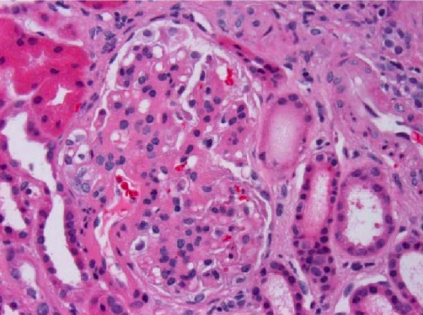 Glomerulus with thickened mesangium and segmental mesangial hypercellularity