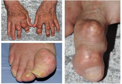 Gout targeting the foot