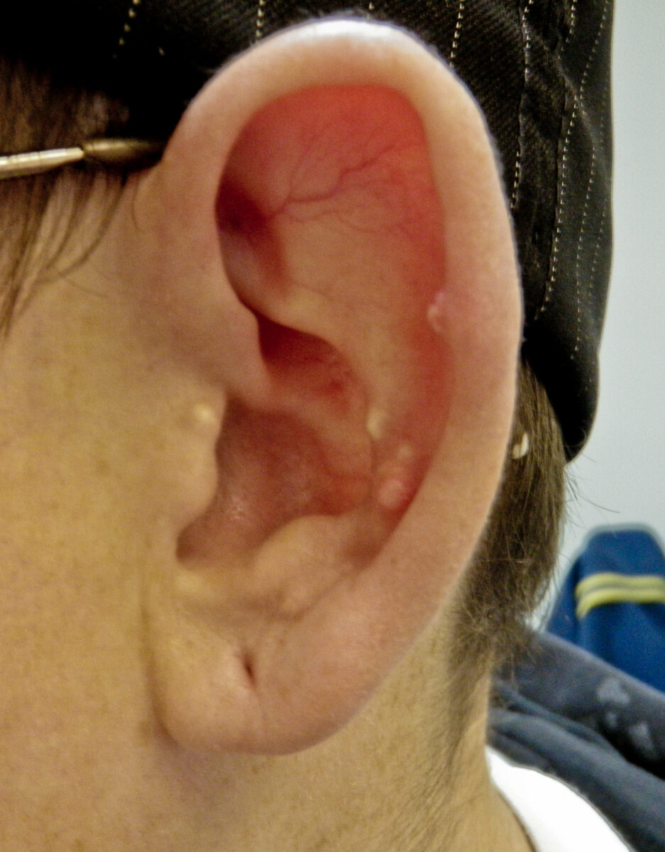 Gouty tophi in the helix of the ear