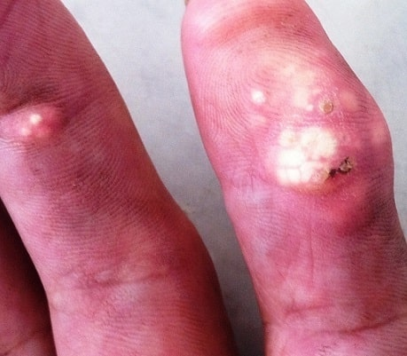 Gouty tophus on the hand