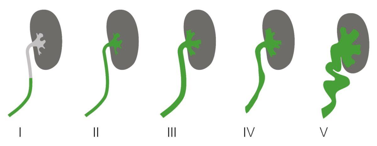 Grades of vesicoureteral reflux