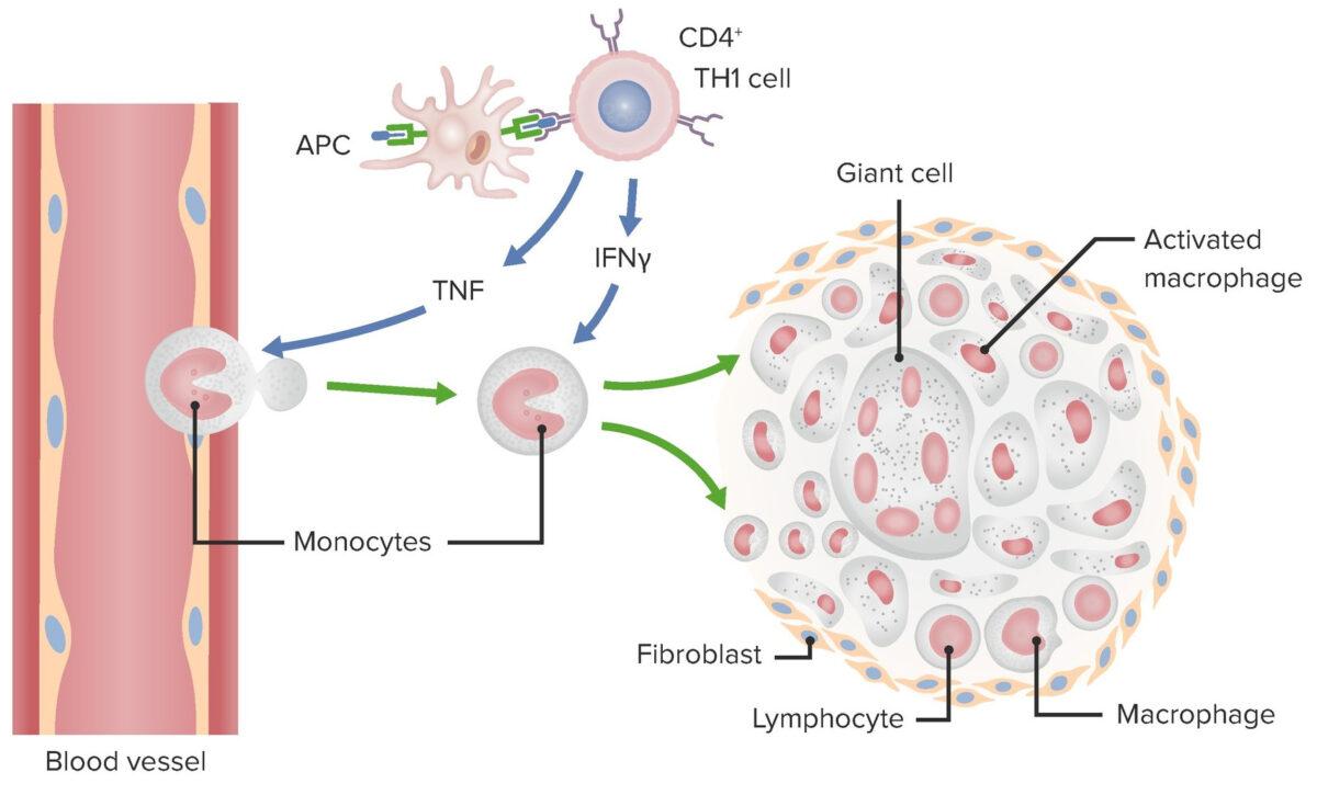 Granuloma Mechanism in Type IV hypersensitivity
