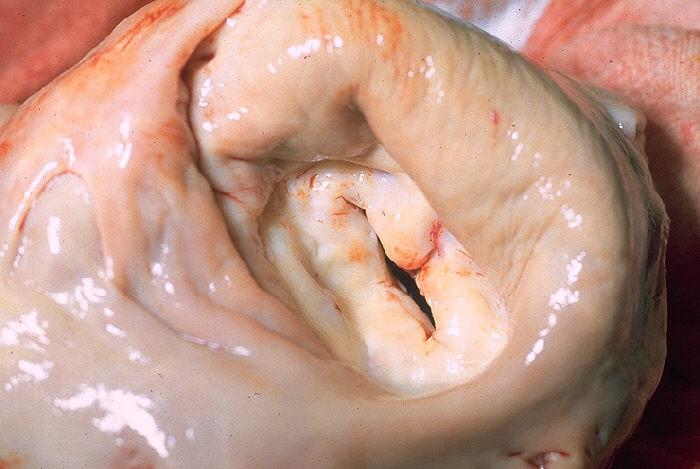 Gross pathology mitral stenosis
