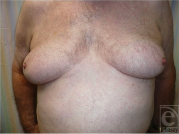 Gynecomastia in a phenotypic male with AIS