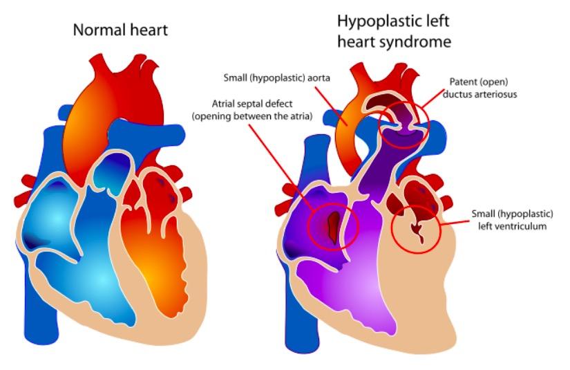 HLHS vs. normal heart