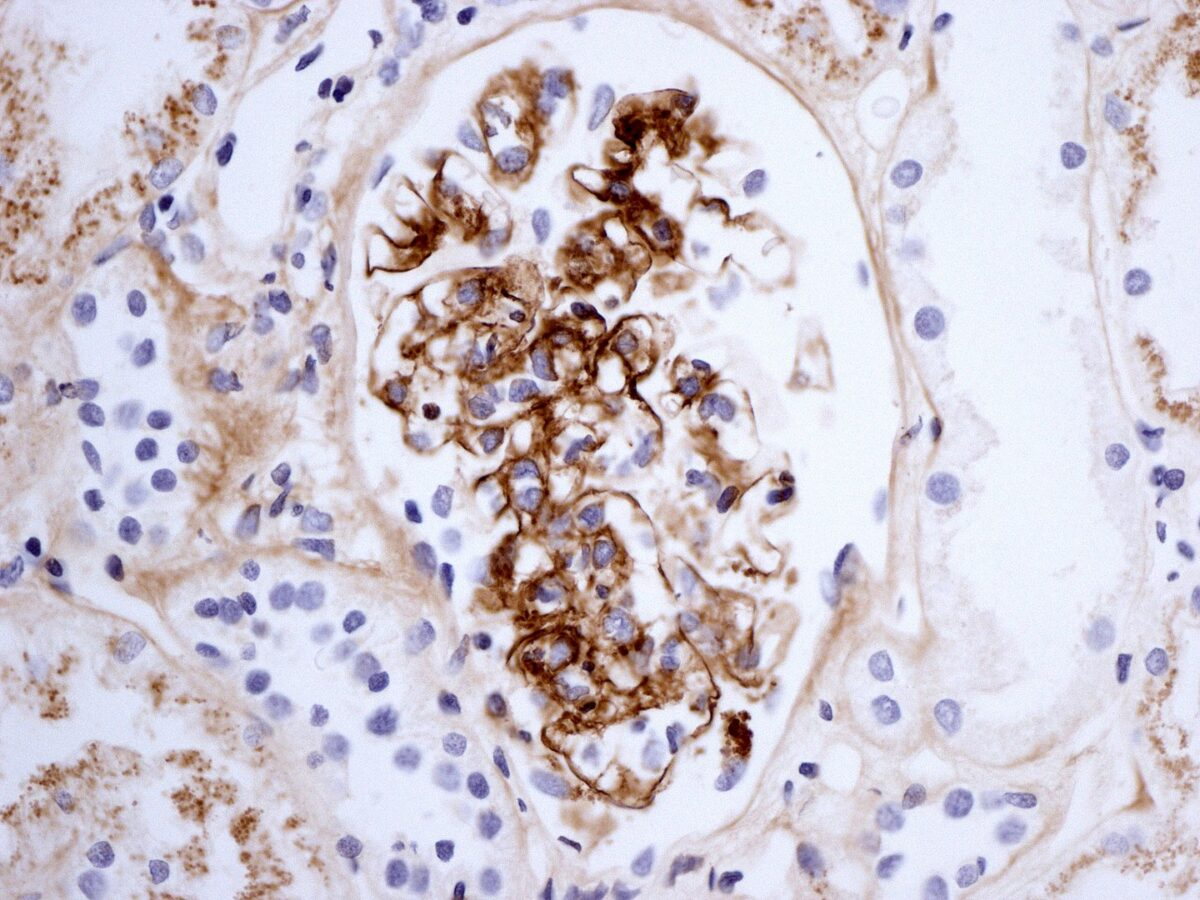 HSP renal biopsy showing immunostaining for IgA