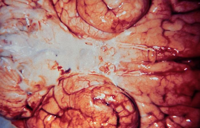Haemophilus influenzae meningitis