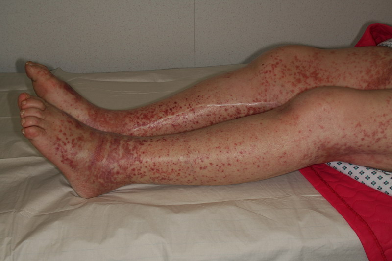 Hallmark purpuric rash of Henoch-Schönlein purpura