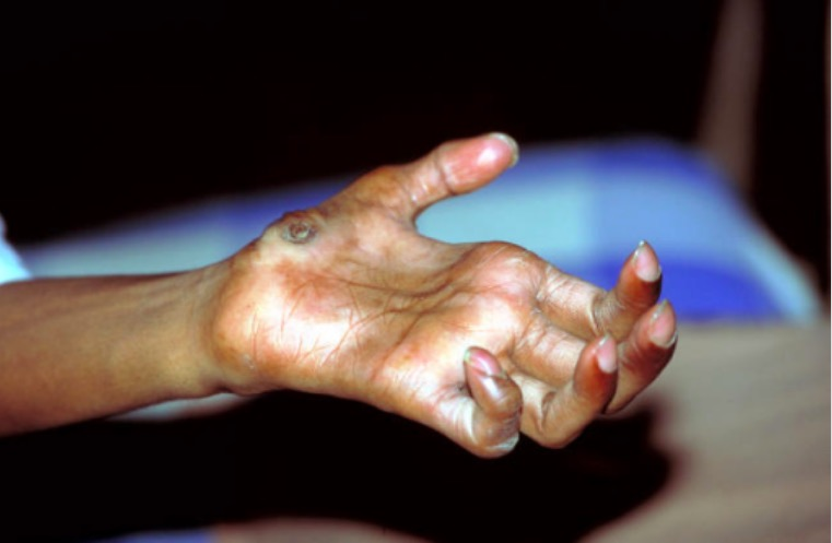 Hand deformity due to leprosy