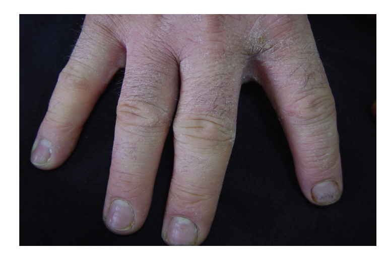 Hand eczema with fissure