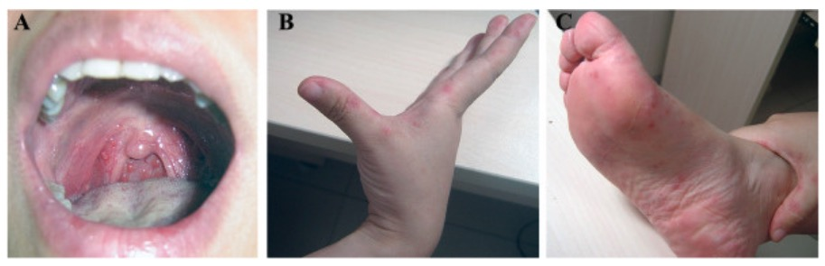 Hand foot and mouth disease presentation