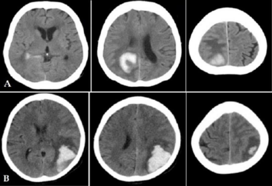 Head MSCT imaging of haemorrhagic stroke patients